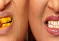 Izbjeljivanje zubi i liječenje desni kurkumom: Posebno dobro za zube pušača i ljubitelja kave!