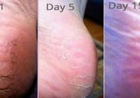 Ima 57 godina, a stopala poput dvadesetogodišnjakinje: Recept protiv tvrdih naslaga na stopalima!
