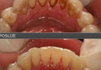 Skinite kamenac, očistite plak i uništite bakterije u ustima sa samo jednim sastojkom