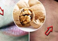 DREVNI RUSKI RECEPT: Pomaže u uklanjanju dlačica sa lica i tijela!