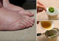 NIKAD SE LAKŠE NISAM RIJEŠILA PROBLEMA: Ovaj moćni čaj je najbolji lijek za natečene noge!