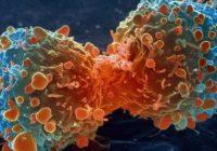 Kiselost organizma – uzročnik najtežih bolesti