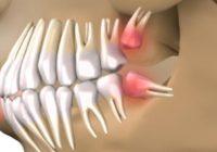 REVOLUCIJA! ZBOGOM PROTEZAMA: Otkriveno kako vam u samo 9 tjedana mogu narasti novi zubi!