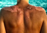 OTKRIVENA VELIKA PREVARA: Ne izaziva Sunce rak kože, već ono što upotrebljavamo, evo šta … (VIDEO)