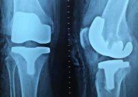 Hrskavica i tetive u mom levom kolenu su bili u potpunosti oštećene: Ovaj lek obnovio ih je za 7 dana! (RECEPT)