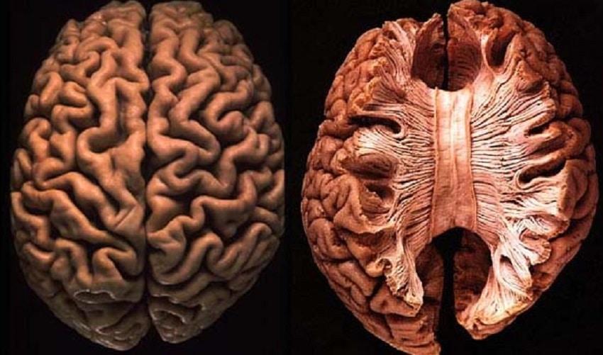 Neuronaučnici upozoravaju : Ako ne spavate DOVOLJNO, vaš mozak će se bukvalno početi JESTI